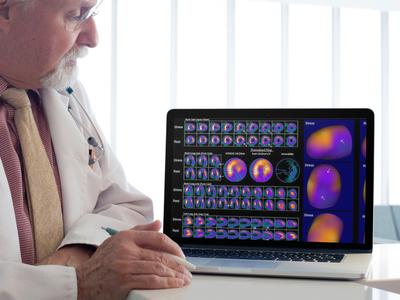 Papel da Medicina Nuclear na Cintilografia Miocárdica