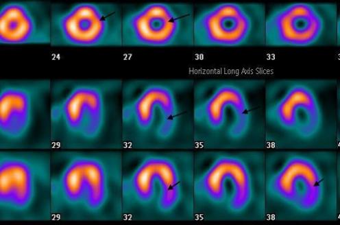 Viabilidade miocárdica: ainda está viva